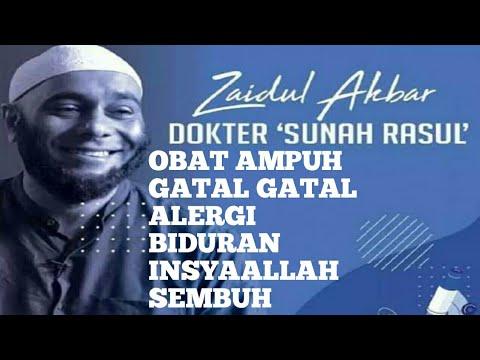Obat GATAL ALERGI,BIDURAN RESEP Dr.zaidul Akbar