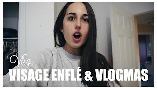 VLOG | Visage enflé, encore malade & vlogmas ?!?