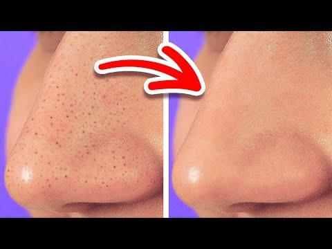 Вопрос: Как за неделю получить безупречную кожу?