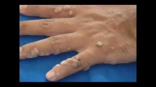 Images, Pictures, Photos of Warts on Hands and Fingers Thumbnail