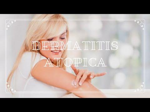 Productos para la dermatitis atópica