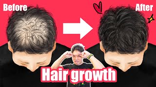 [Hair growth] Incredible self-massage! (By acupuncturist specialized in thin hair) 抜け毛予防マッサージ