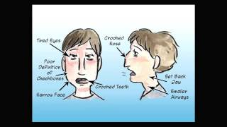 Mouth Breathing Changes your face