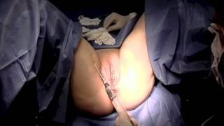 Repeat youtube video Lipotransferencia En Ginecologia