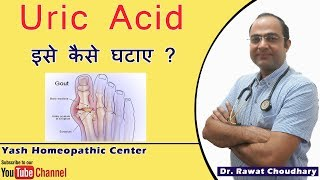 How to control Uric Acid | What is Uric Acid | Uric Acid for Gout(गठिया) Patients