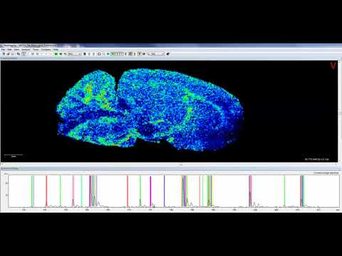 The Power of Mass Spectrometry Imaging