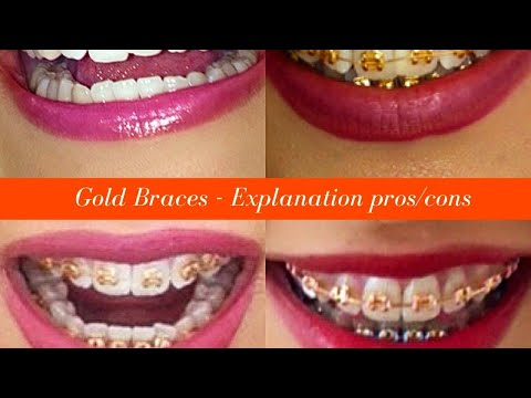 Gold Ces Around How Much Do Braces Cost