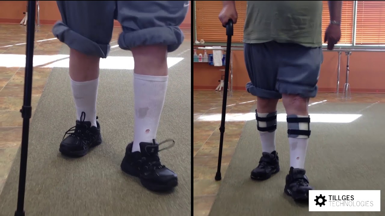 Propulsion Bilateral Partial Foot Prosthesis
