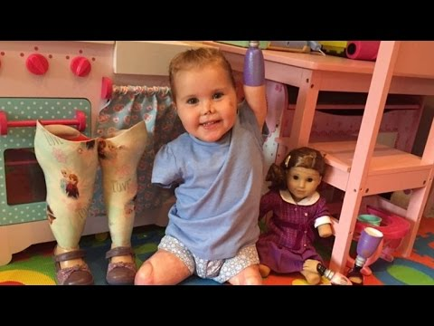 2-Year-Old Who Lost Limbs From Meningitis Is So Excited To Have Matching Doll