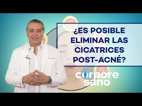 ¿Es posible eliminar las cicatrices post-acné?