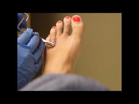 Morton's Neuroma Surgery Recovery