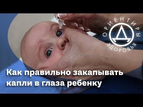Как правильно закапывать капли в глаза ребенку.
