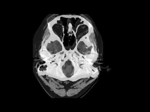CT OF HEAD/BRAIN WITH AND WITHOUT CONTRAST - YouTube