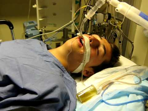 Image result for coma