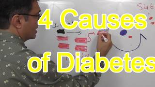 4 Causes of Diabetes