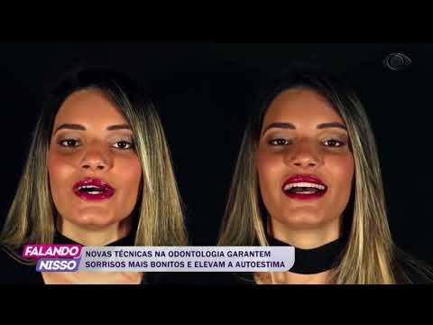 FALANDO NISSO 03 09 2018 PARTE 02