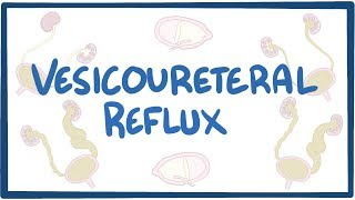 Vesicoureteral Reflux   An Osmosis Preview