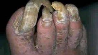 Se puede mojar las manos al hongo de las uñas