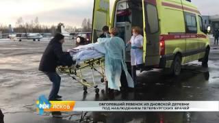 Смотреть видео РЕН Новости Псков 23 01 2017 # Обгоревший ребенок доставлен в Санкт Петербург онлайн
