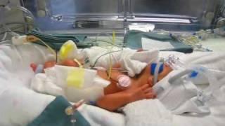 Premature Baby Blood Transfusion