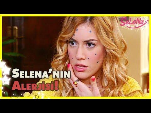 Selena'nın Alerjisi!