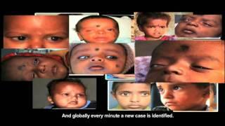 Short Film on Importance of Eye Donation