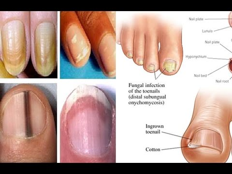 Nail Symptoms and What It Means for Your Health!