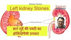Left kidney Stones, homeopathic treatment  Dr. N. C. Pandey, Sahas Homeopathy