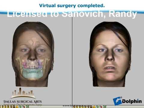 Jaw Surgery Dallas, TX   Corrective Jaw Surgeon   Dallas