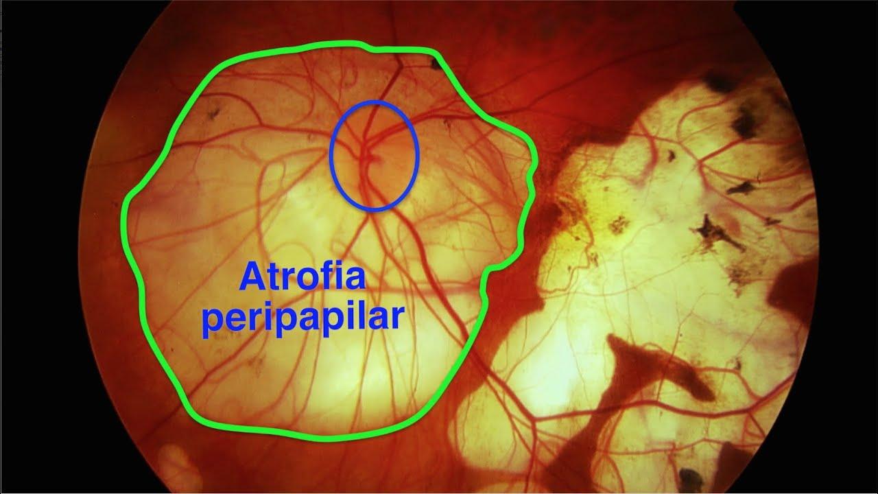 Miopia | Clinica Novaoptic