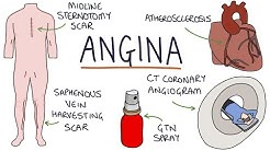 Understanding Angina: Visual Explanation for Students