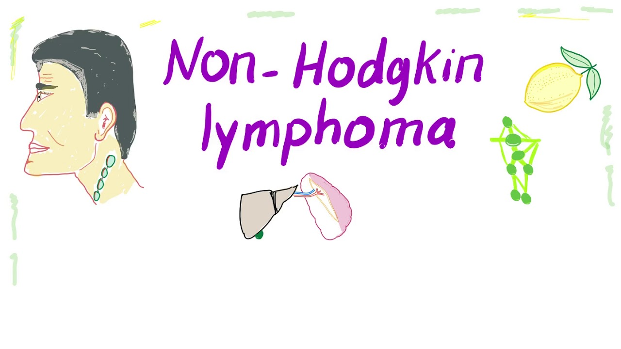 a non-hodgkin-rák örökletes