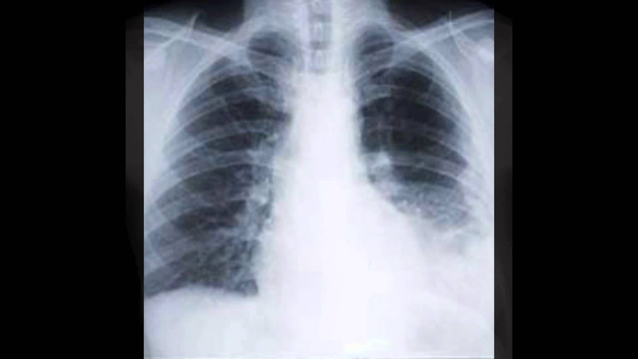 asbestos mesothelioma xray slide