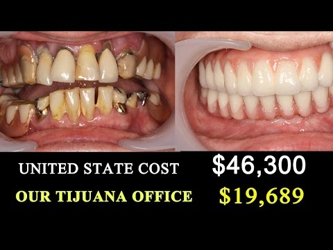√ Tijuana Dentist VS US COST- Trip to Mexico Dentists