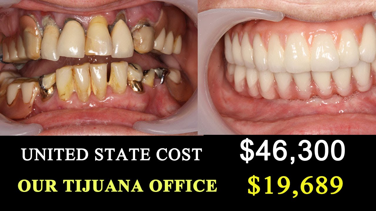 Tijuana Dentist VS US COST- Trip to Mexico Dentists - YouTube