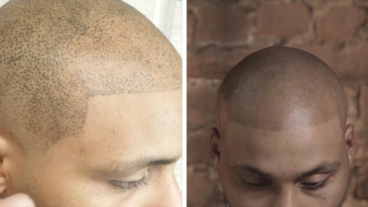 Guy Gets Botched Hair Tattoo Fixed Youtube Instead of battling male pattern baldness with medication or an expensive hair transplant, guys. guy gets botched hair tattoo fixed