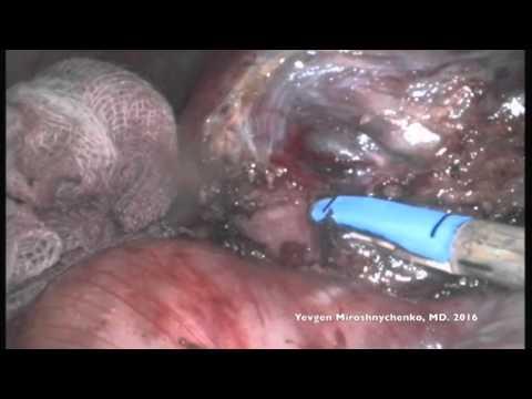 Laparoscopic retroperitoneal excision of the lymphatic mass. Castleman's disease