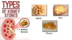 hqdefault - Struvite Kidney Stones Causes