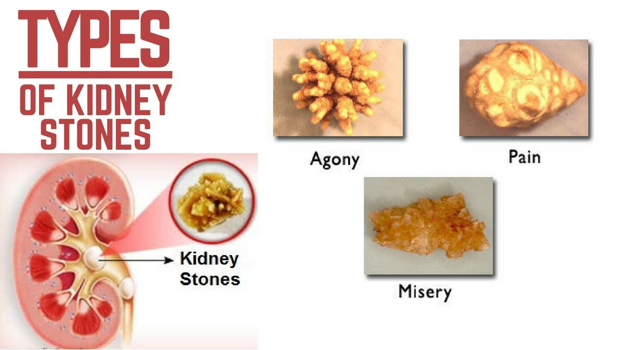 TYPES OF KIDNEY STONES - YouTube
