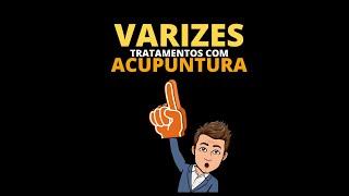 Para venosa acupuntura funciona a insuficiência