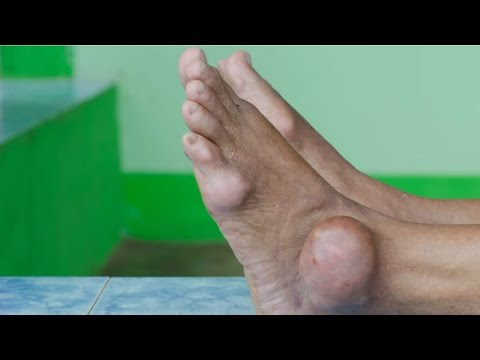 how to cure gout naturally with food gout symptoms and diagnosis signs of high levels of uric acid