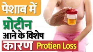 यूरिन से प्रोटीन निकलने के क्या कारण होते हैं? | Proteinuria Treatment In Ayurveda