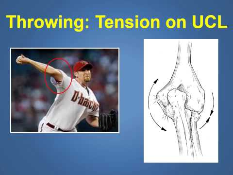 Ulnar Collateral Ligament Injuries & Treatment Explained by a Phoenix Orthopedic (480)219-3342