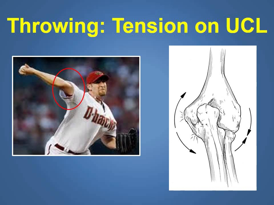 Ulnar Collateral Ligament Injuries Treatment Explained By A