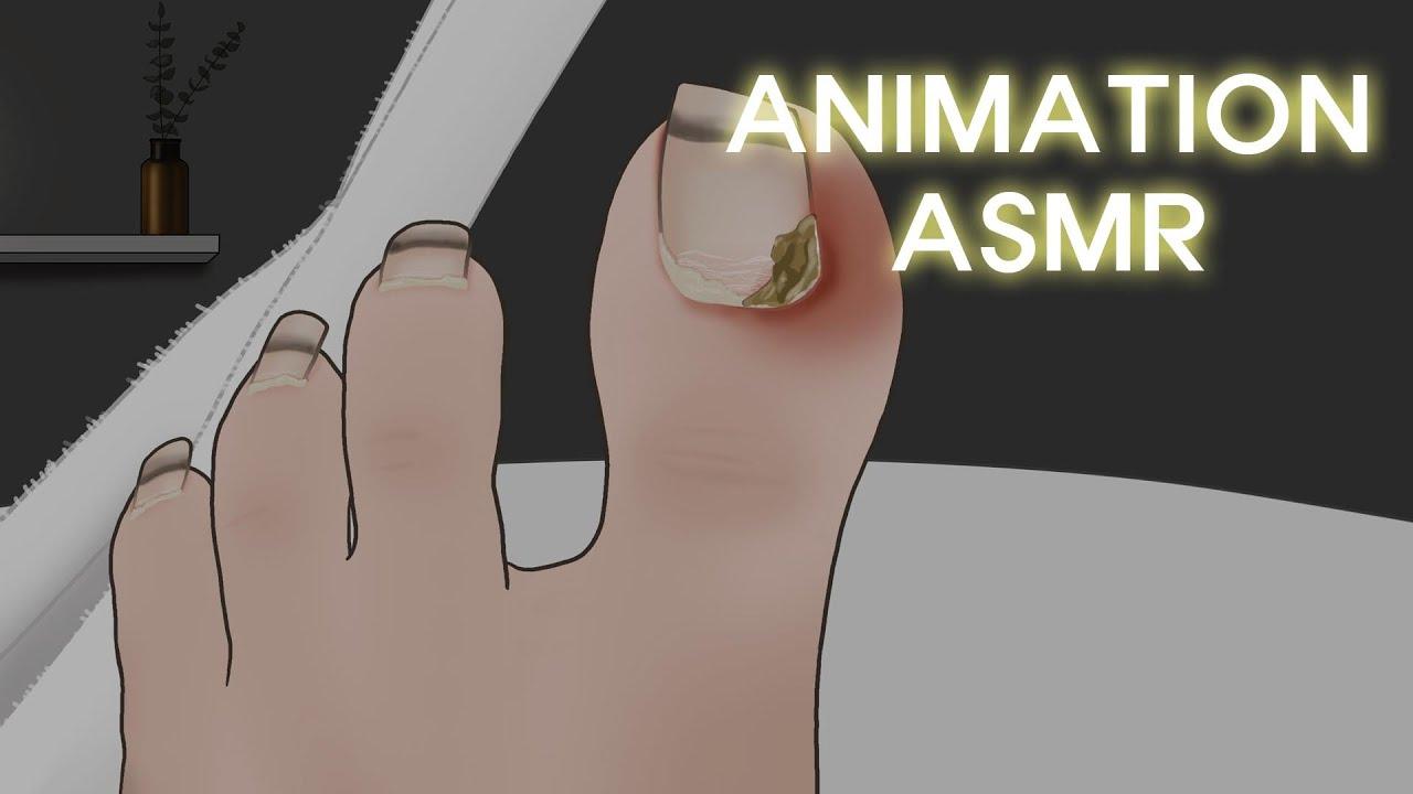 고막에 때려박는 팅글 사운드! 리얼한 내성 발톱 치료 애니메이션 ASMR / Ingrown Toenail Removal treatment