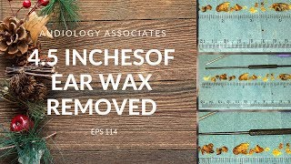 4.5 INCHES OF EAR WAX REMOVED - EP 114