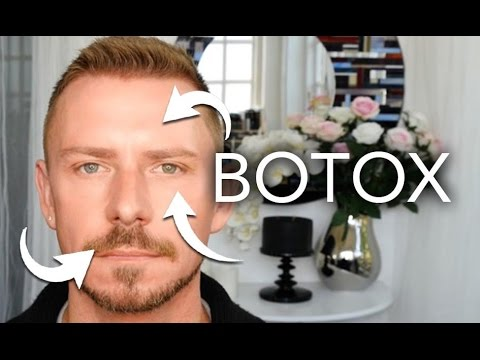 THIS IS WHAT BOTOX LOOKS LIKE - IN REAL LIFE - ON ME