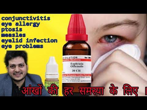 Euphrasia officinalis Homeopathic medicine for eye problems ? sign & Symptoms, dosage