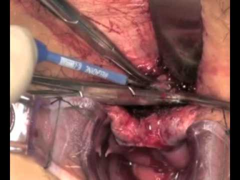 A Sphincter Saving Technique For Fistular In Ano Lift Youtube