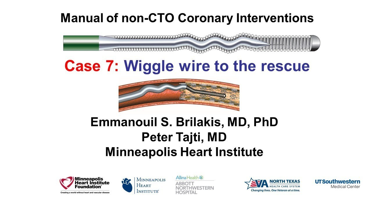 Case 7: Manual of Non-CTO Interventions - Wiggle wire to the rescue